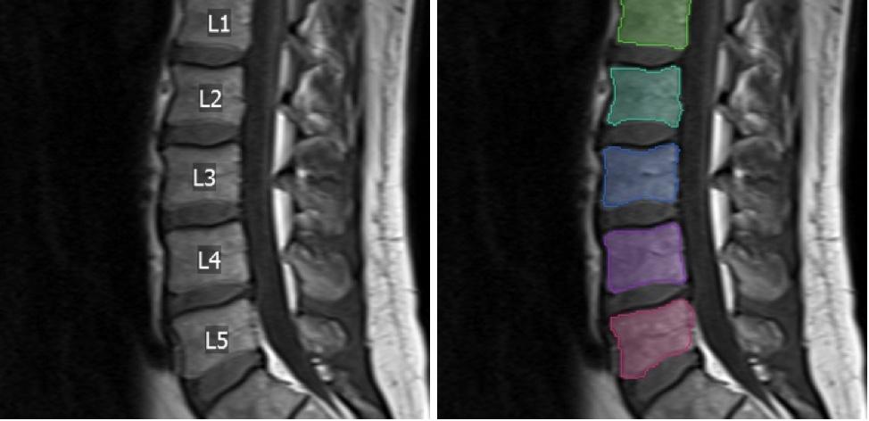 Visage AI Spine Labeling.jpg